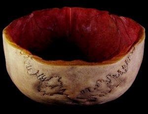 Le secret bien glauque des crânes rituels tibétains 1413-300x231